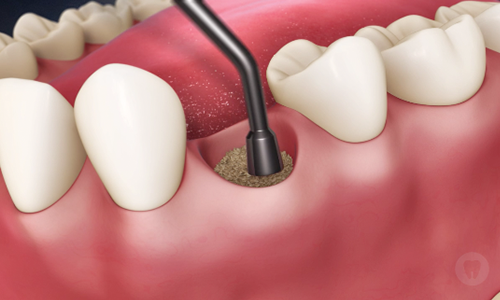 Bone Grafting | Smile Makeover Dental Aesthetics & Implant Center