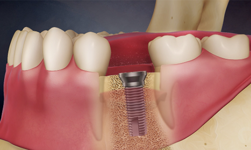 Dental Implants | Smile Makeover Dental Aesthetics & Implant Center