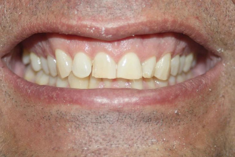 Veneers Case 1 Before | Smile Makeover Dental Aesthetics & Implant Center
